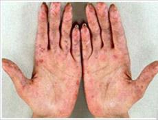 特发性血小板减少性紫癜