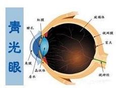 青光眼预防