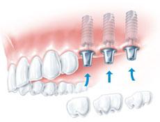 牙种植体由