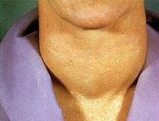 甲状腺恶性肿瘤