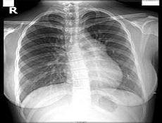 肺动脉高压的发病率如何?