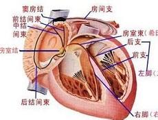 导管射频消融术治心房颤动